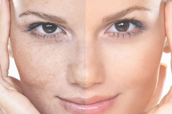 Get your pigmentation laser treated by Rejuvi in Vredenburg today!